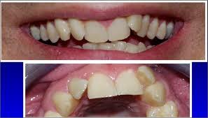 اختبار الابتسامة Smile Test << Intruded teeth.jpg