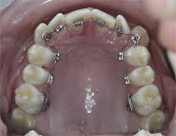 Crazy Idea # 358: Straighten Your Own Teeth with Dental Floss Braces